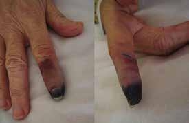 Kožní změny v důsledku prochlazení při kryoglobulinemii