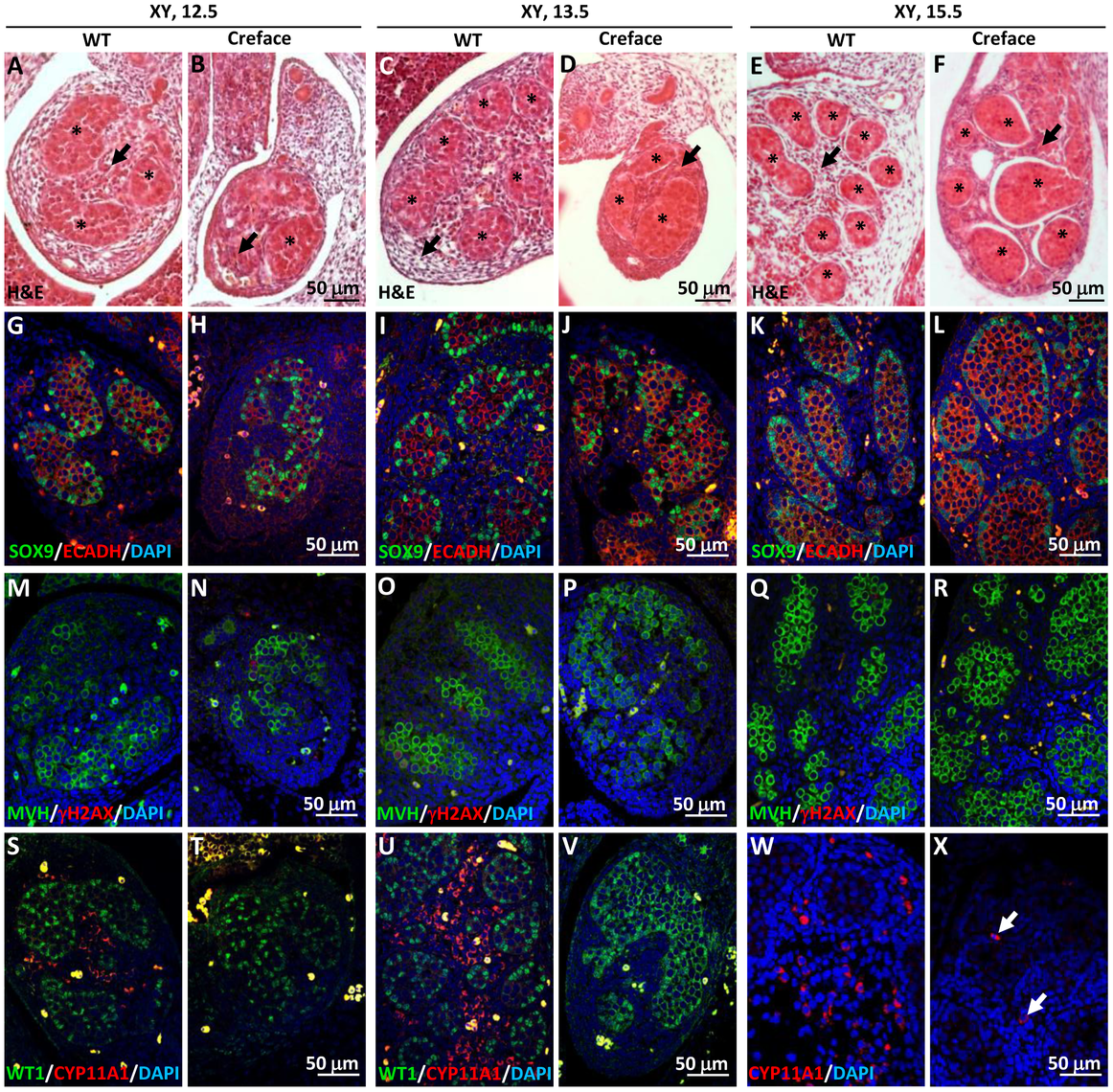 Testicular dysgenesis in mouse embryo lacking <i>Hhat</i>.