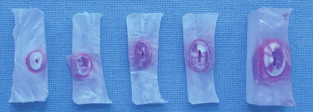 Rozsah průniku barviva v různých částech kořene.