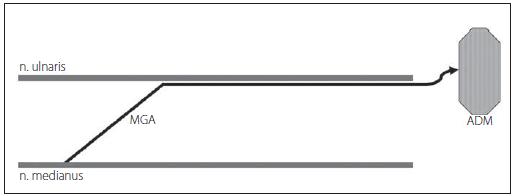 MGA typu I – vlákna n. medianus inervují hypotenar – m. abductor digiti minimi (ADM). Fig. 6. MGA type I – fibers of the median nerve innervate hypotenar – m. abductor digiti minimi (ADM).