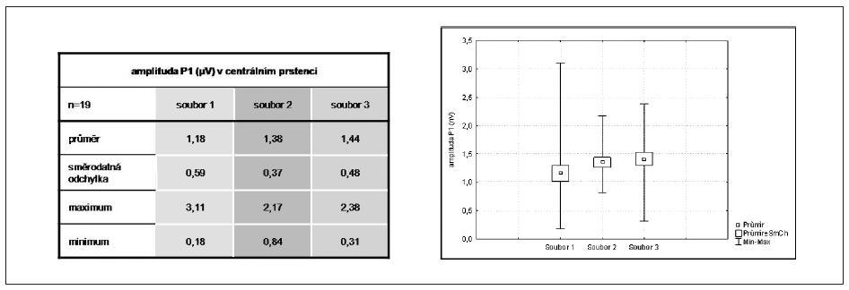 Srovnání amplitudy komponenty P1 v centrálním prstenci u Mf ERG mezi soubory 1, 2, 3