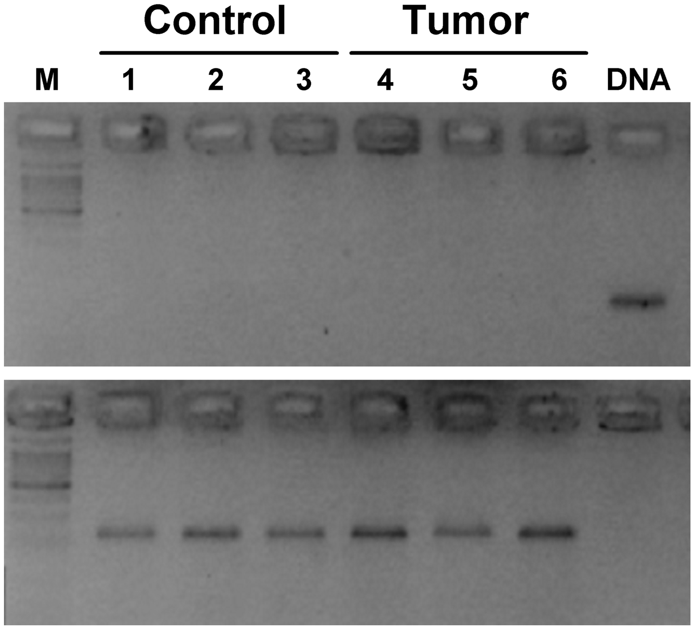 Absence of <i>Lasc1</i> gene expression in mouse normal lung and lung tumors of (A/J×C57BL/6J)F1 mice.