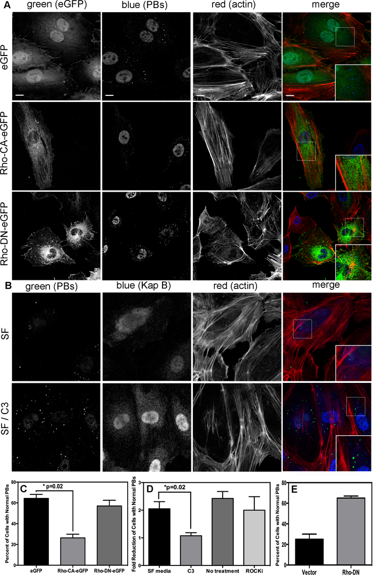 KapB activation of RhoA-GTPase but not the downstream kinase ROCK is necessary for p-body disruption.