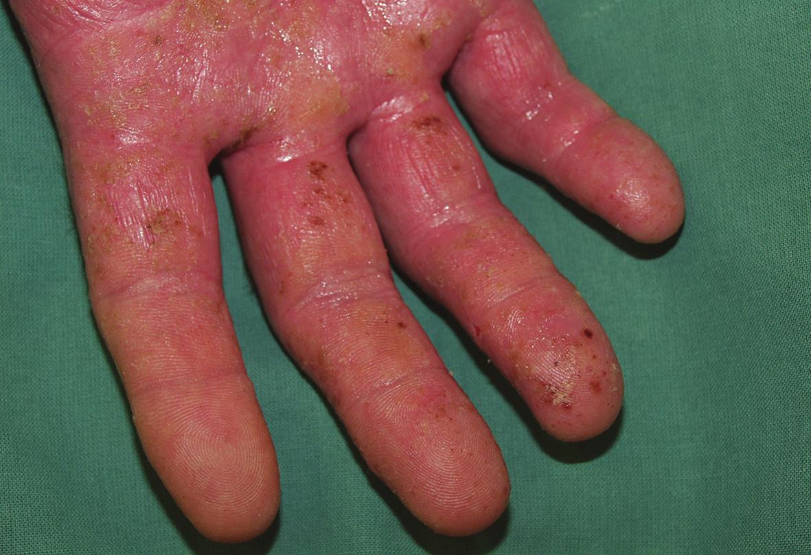 Proteinová kontaktní dermatitida dysidrotického typu po bílkovině latexu