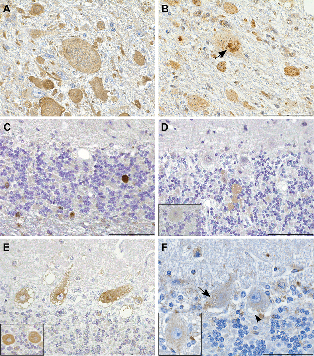 Immunohistochemistry indicates disturbed autophagic flow in neurons.