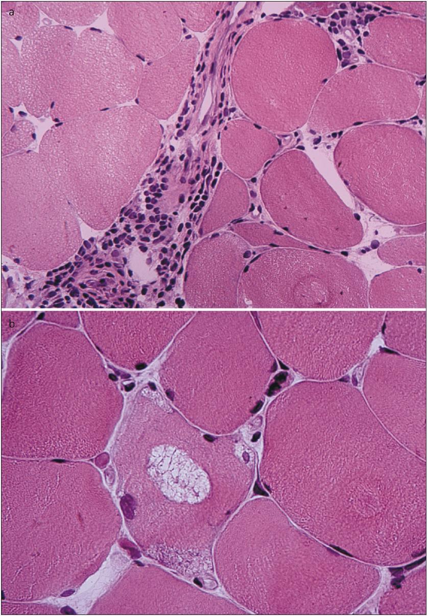Nahoře: perimysiální i endomysiální lymfocytární infiltrace (HE, zvětšení 400×). Dole: lemované vakuoly obsahující jemně granulární bazofilní materiál (HE, zvětšení 600×).