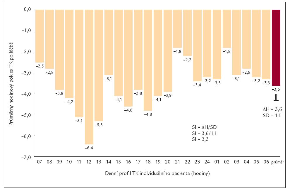 Výpočet smoothness indexu.