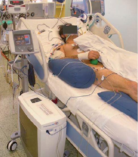Endovaskulární hypotermie – system Thermogard.