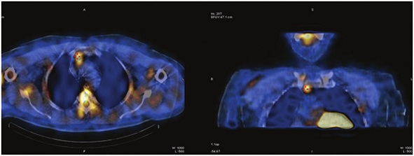 Scintigrafické vyšetření 99mTc MIBI SPECT/CT v roce 2013 Fig. 2: 99mTc MIBI-scintigraphy combined with CT in 2013