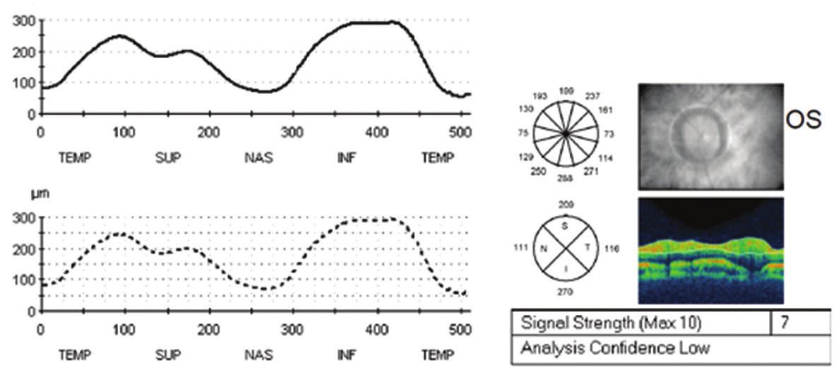 Vstupní měření vrstvy nervových vláken sítnice k monitoraci edému papily zrakového nervu původně na optické koherenšní tomografii Stratus Zeiss na levém oku