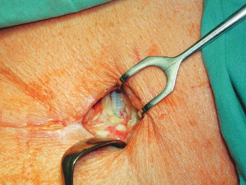 Stav po nekrektomii před přiložením V.A.C. Fig. 2. A wound after necrectomy before V.A.C. application