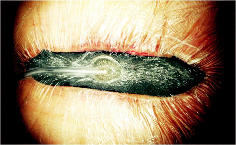 Hluboká sternální infekce. Aktivní podtlaková terapie Fig. 3. Deep sternal infection. Working VAC therapy