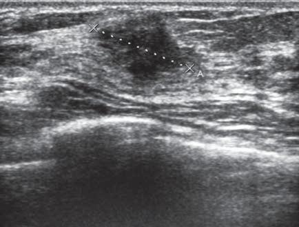 Ultrasonografi cký obraz zhoubného nádoru prsu – hypoechogenní ložisko s nepravidelnou konturou