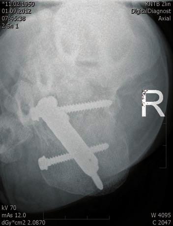 Osteosyntéza hřebem C nail Medin - axiální projekce
