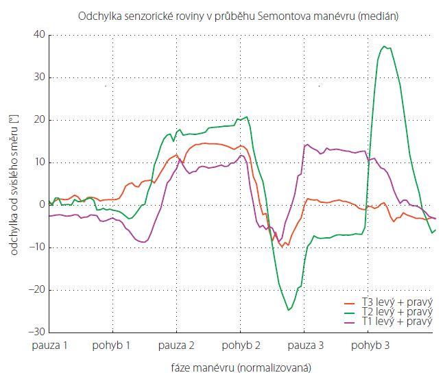 Normalizovaný graf znázorňující intraindividuální variabilitu průběhu SM (medián odchylky od senzorické roviny). Data jsou společná pro provedení menévru na levou i pravou stranu.