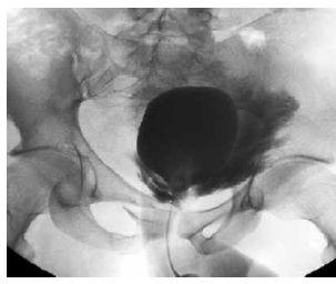 Cystografie – extraperitoneální ruptura močového měchýře Fig. 8. Cystography – extraperitoneal rupture of the urinary bladder