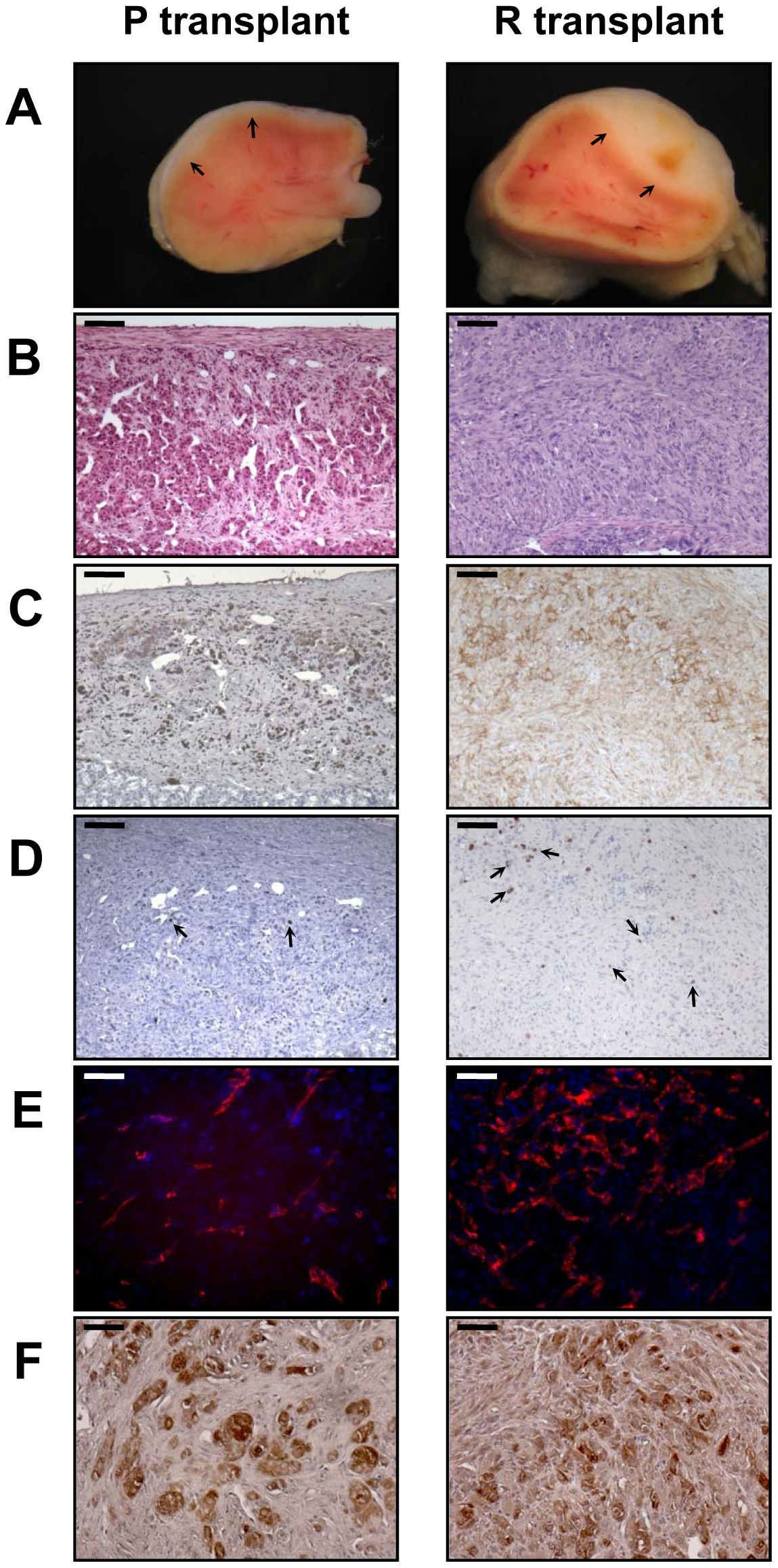 Characterization of tissues formed from P or R cell transplantation at day 35.