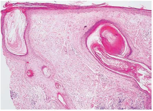 Diskoidní lupus erythematodes (HE, původní zvětšení 100krát)