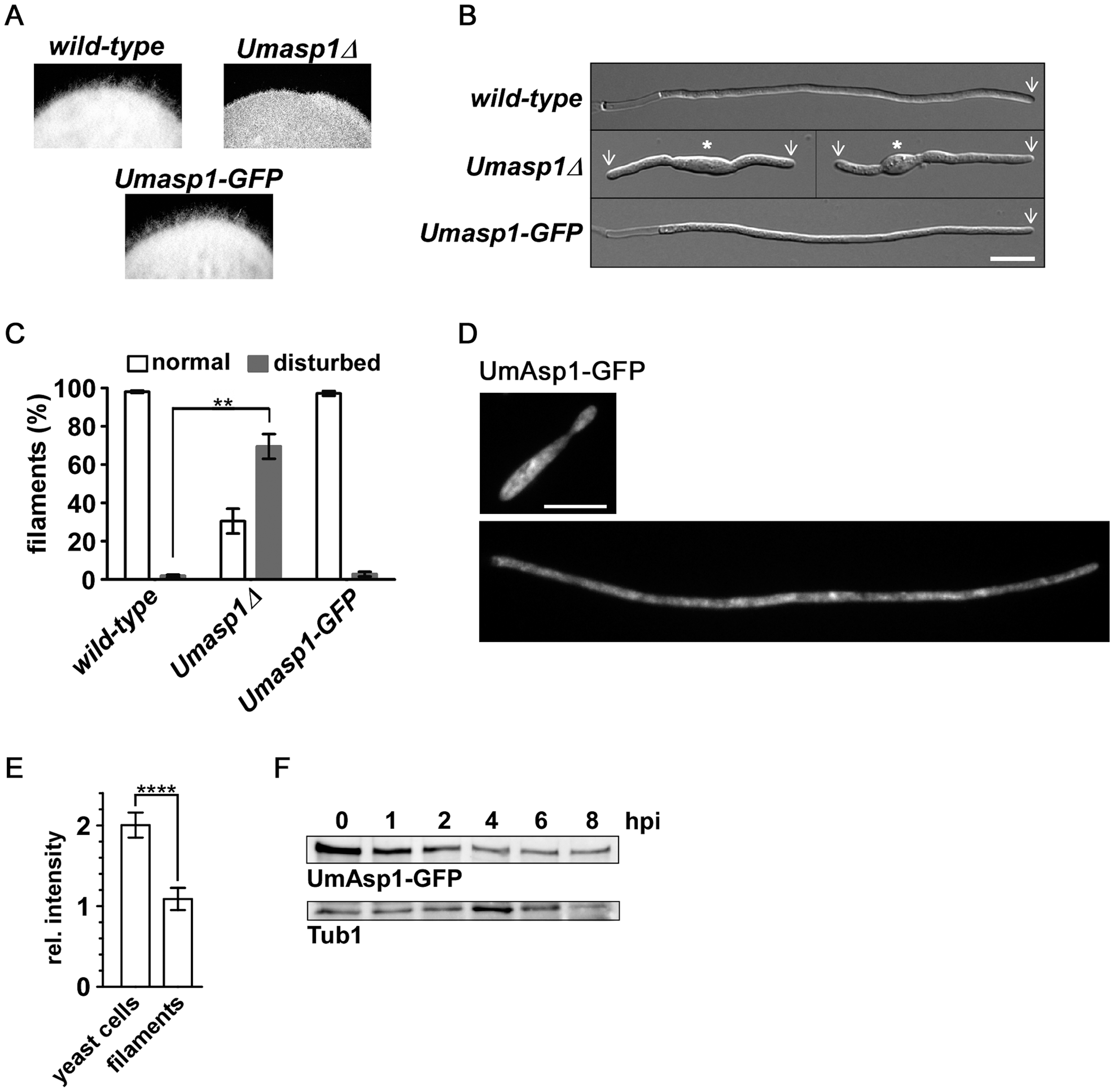 Loss of UmAsp1 causes defects in filamentous growth.