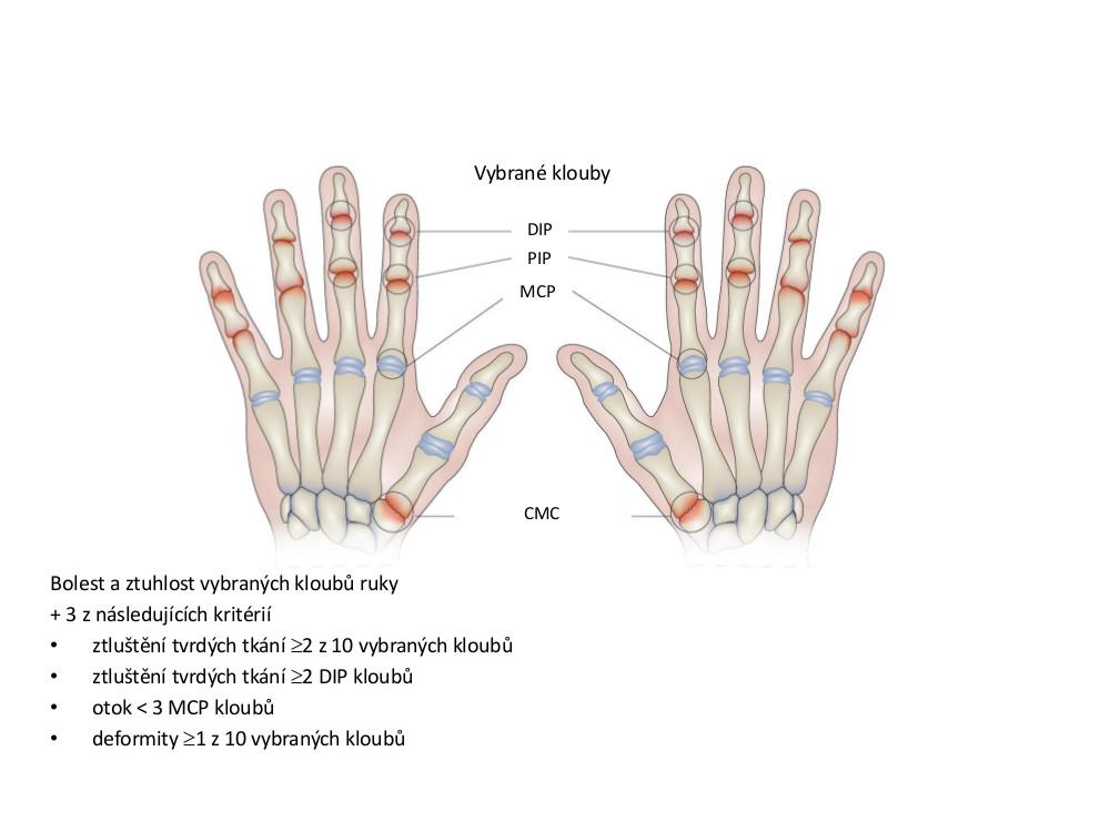 Klasifikační kritéria osteoartrózy (OA) rukou podle Americké revmatologické asociace <em>(upraveno dle: Altman et al., 1990)</em>