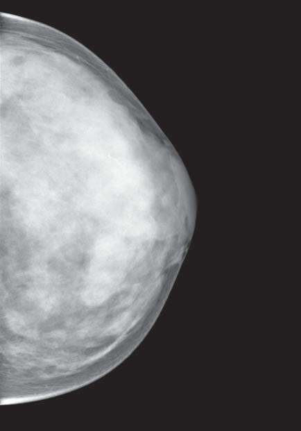 Mamogram – vysoce denzní žláza Tabár V (dense breast)