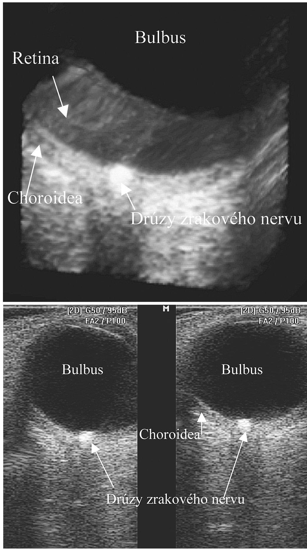 a. 2D USG drúzovitej formácie v hlave zrakového nervu b. 3D USG drúzovitej formácie v hlave zrakového nervu