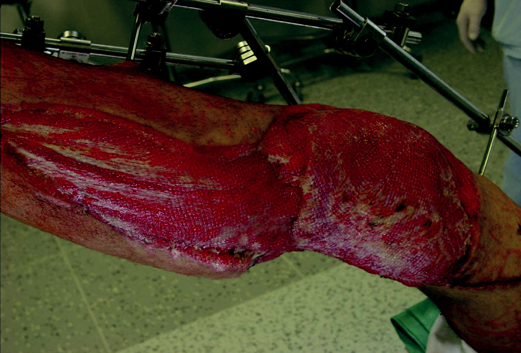 Zakrytí defektu volným lalokem z musculus stratus.