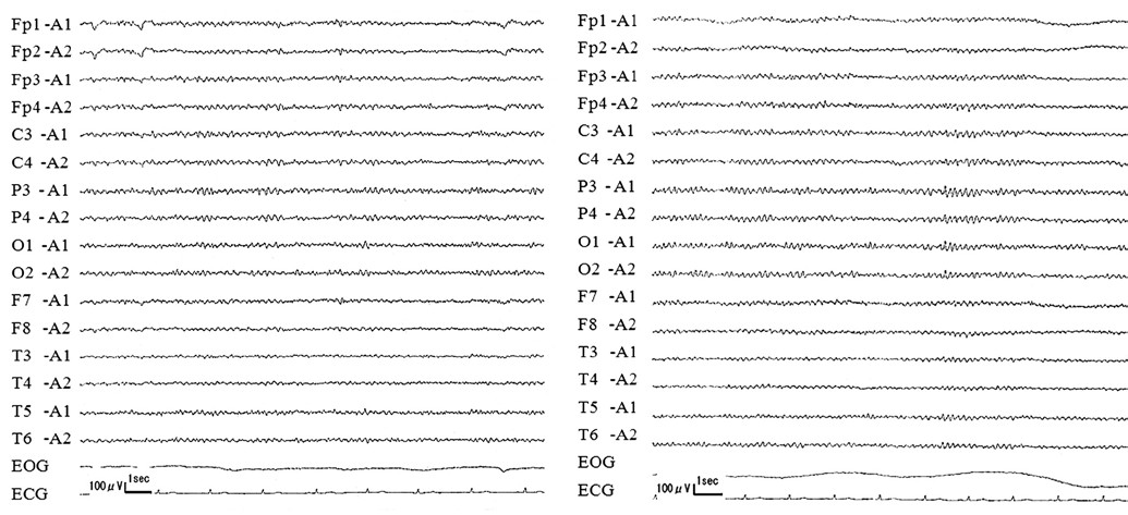 Fig. 2. Electroencephalography (EEG).