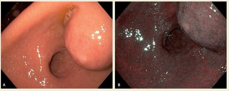 A,B. Gastroskopický obraz a – v normálním světle a b – pod NBI (Narrow Band Imaging).<br> Fig. A,B. Antral intramural tumor in normal and NBI (Narrow Band Imaging).
