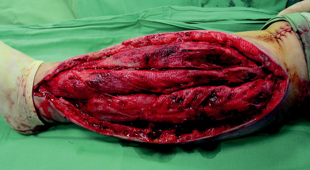 Čisté granulace po ukončení léčby V.A.C.
