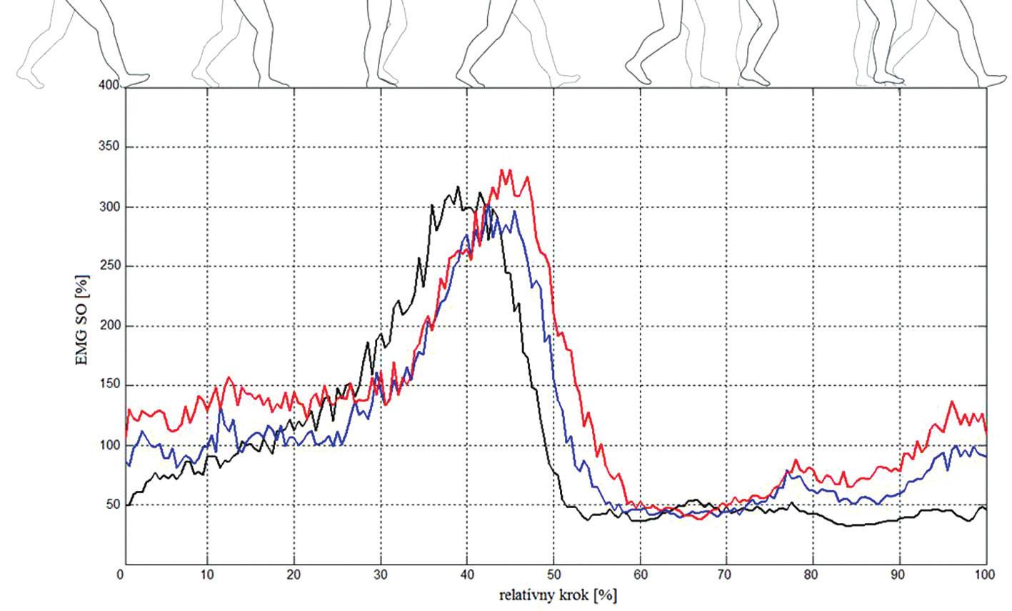Normalizovaná priemerná EMG aktivita m. soleus (SO) počas relatívneho kroku pri troch veľkostiach podpätku: čierna krivka – naboso, modrá – nízky a červená – vysoký podpätok.