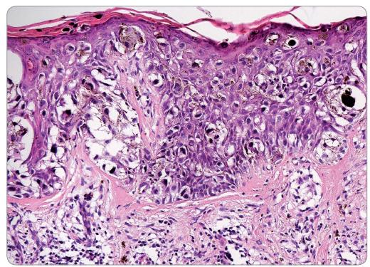 Histologický vzhled povrchově se šířícího melanomu – vysoce atypické melanocyty prorůstají celou tloušťkou epidermis až k povrchu, buňky jsou patrny i ve stratum corneum. V dermis je patrný chronický zánětlivý infiltrát (hematoxylin-eosin; 200×).