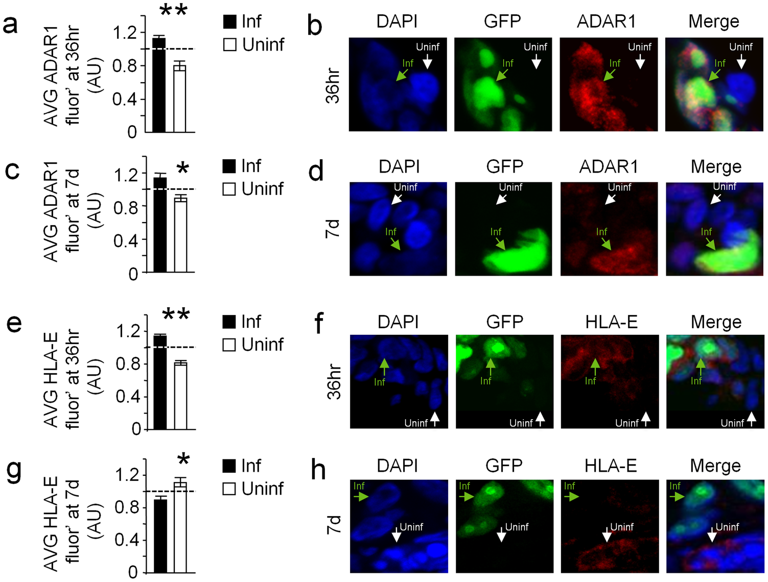 HCMV infection of human decidua organ culture induces ADAR1 and reduces HLA-E expression.