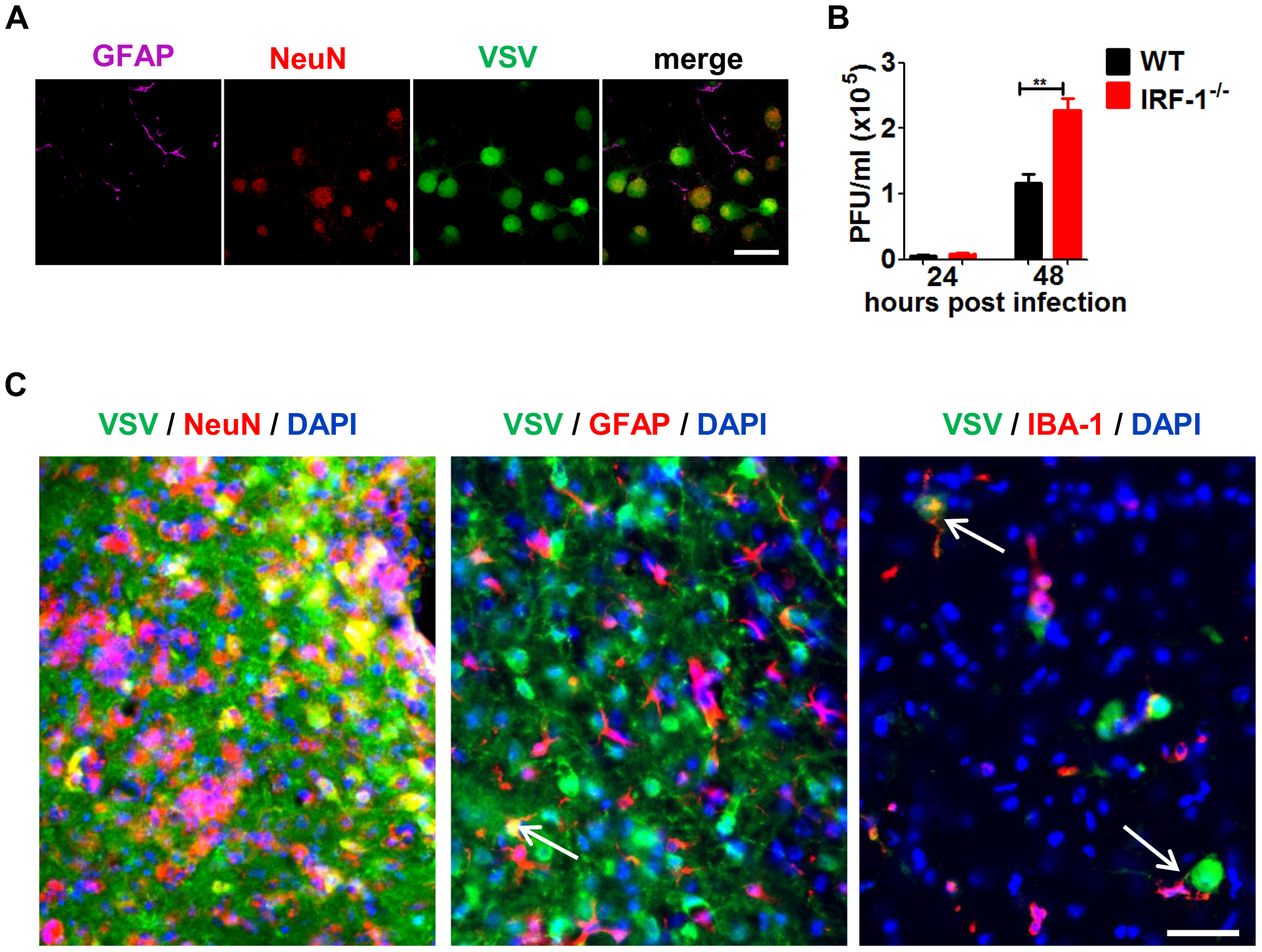 IRF-1 inhibits viral replication in primary neurons.