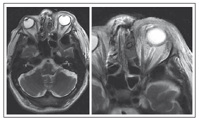 Fig. 2. A 75-year-old diabetic male with left side orbital cellulitis, MRI scans first day after surgery – drain in left ethmoid and frontal sinuses, orbital oedema on the left side.