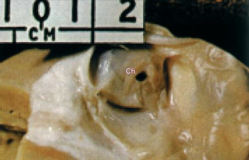 Těžká stenóza plicnice v pohledu ze shora otevřenou plicnicí.