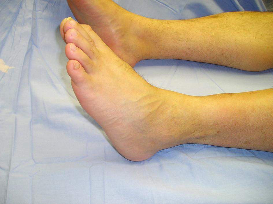 Postavenie palca – hallux flexus v neutrálnej pozícii členka Fig. 1. The toe's position – hallux flexus in the neutral joint position
