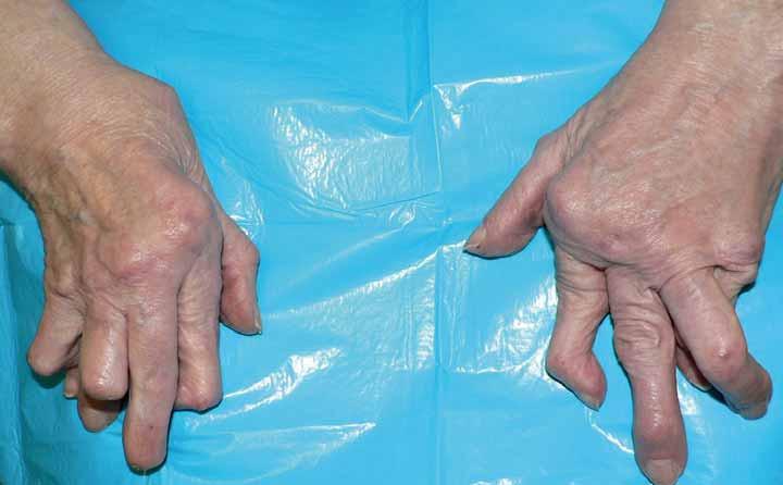 Typický vzhled ruky u destruktivní revmatoidní artritidy.