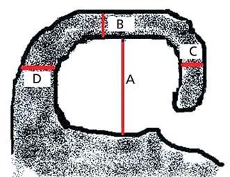 Schéma koronálního řezu hipokampem v úrovni předního pontu. Výška hipokampu (A), šířka choroidální štěrbiny (B), šířka temporálního rohu (C), vzdálenost mezi mozkovým kmenem a hipokampem (D – nehodnotí se).