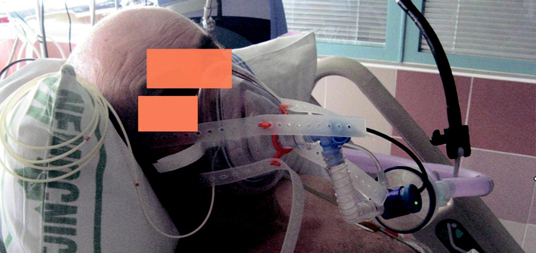 Anesteziologická maska fixovaná silikonovou ohlávkou, systém pasivního zvlhčení směsi a ventilační asistence nemocničním ventilátorem po extubaci.