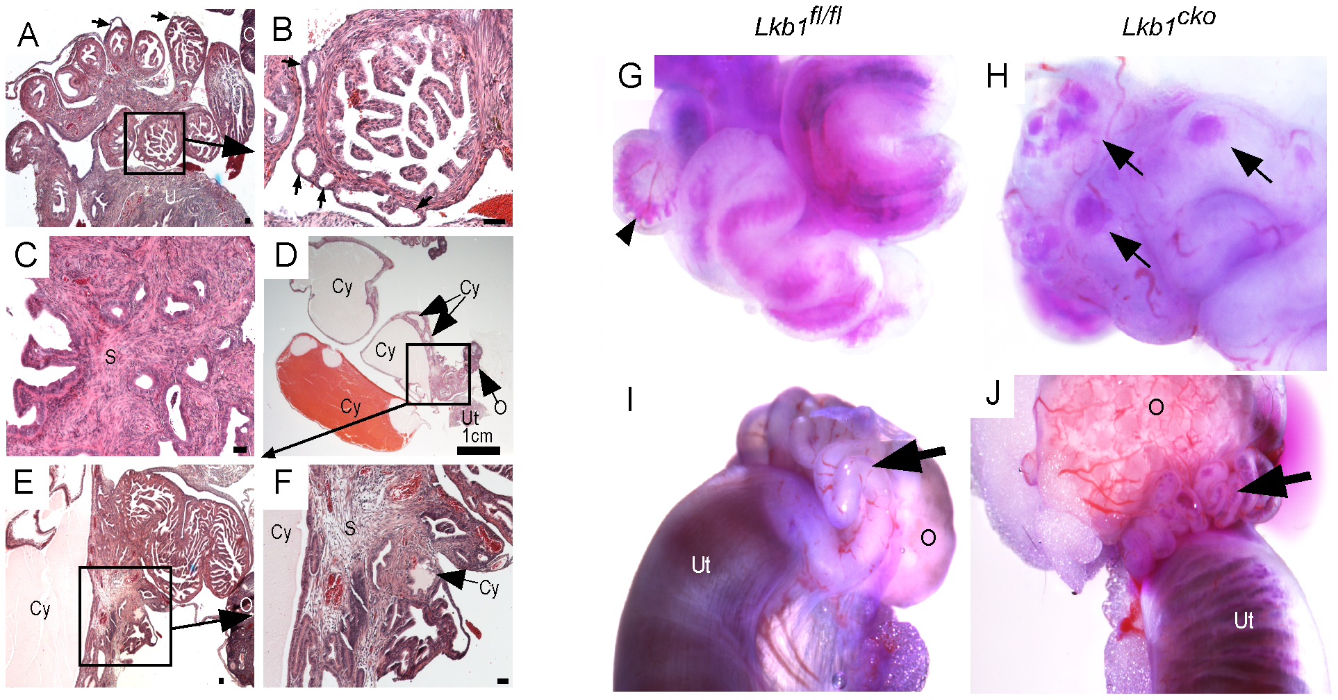 Hyperplastic and/or cystic growth in oviducts of <i>Lkb1<sup>cko</sup></i> mice.