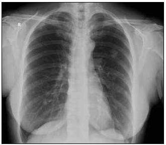 Vstupní vyšetření, ložisko zřetelné na CT zobrazení je nápadné i na klasickém RTG snímku.