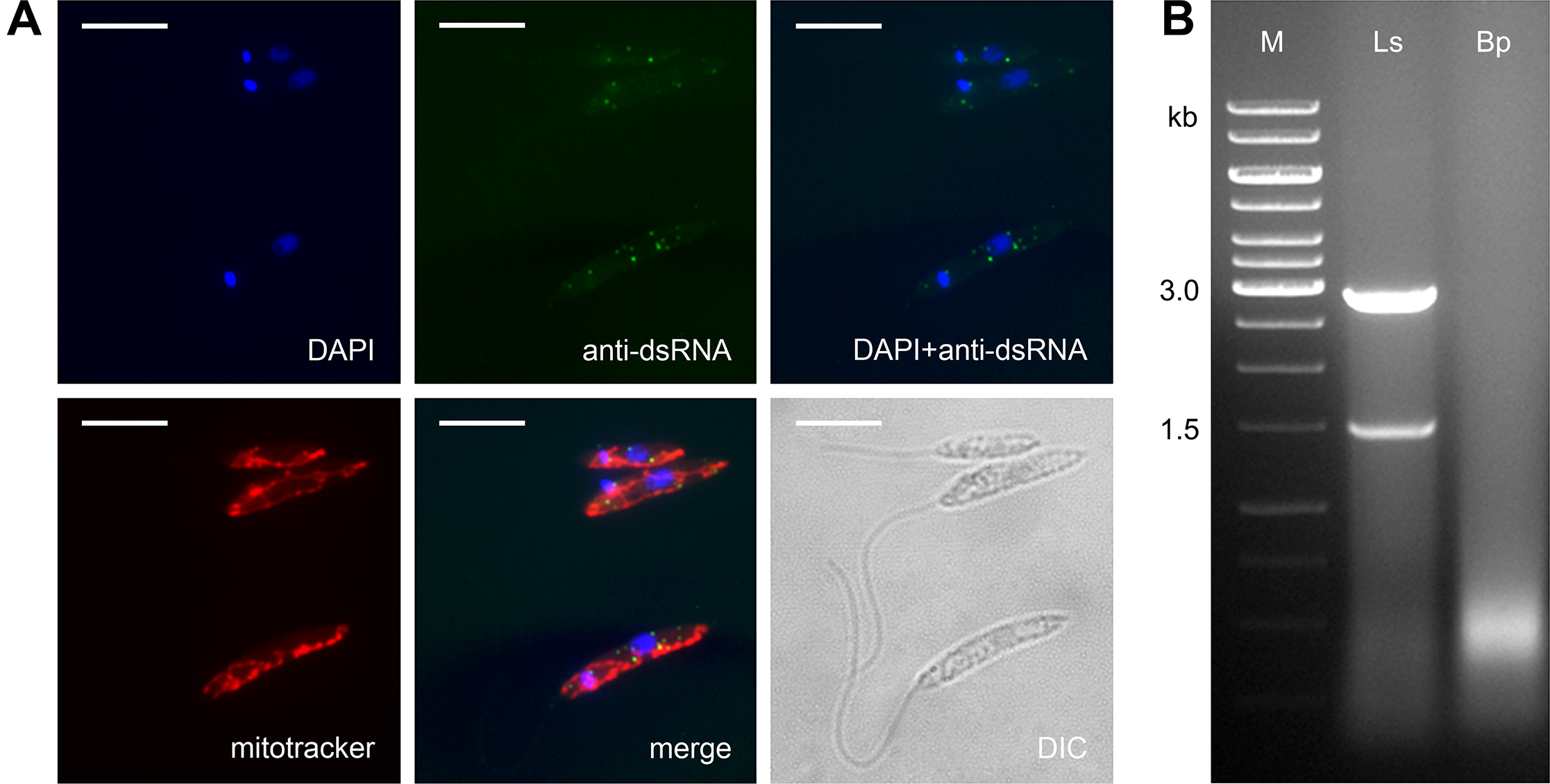 <i>Leptomonas seymouri</i> harbors dsRNA viruses.