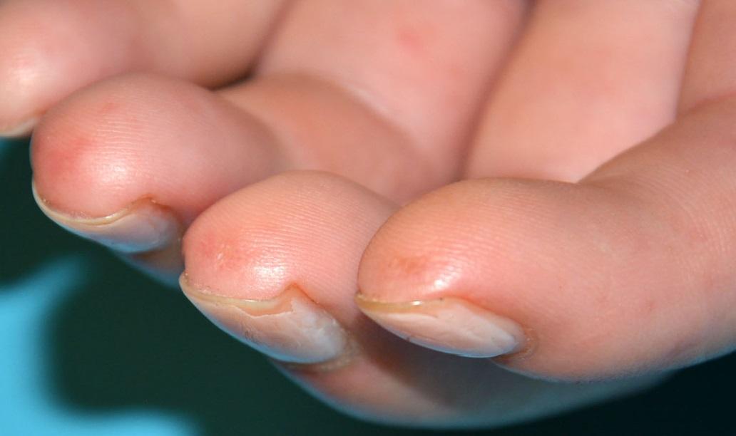 Jamkovité jizvičky na bříškách prstů u pacienta se systémovou sklerodermií
