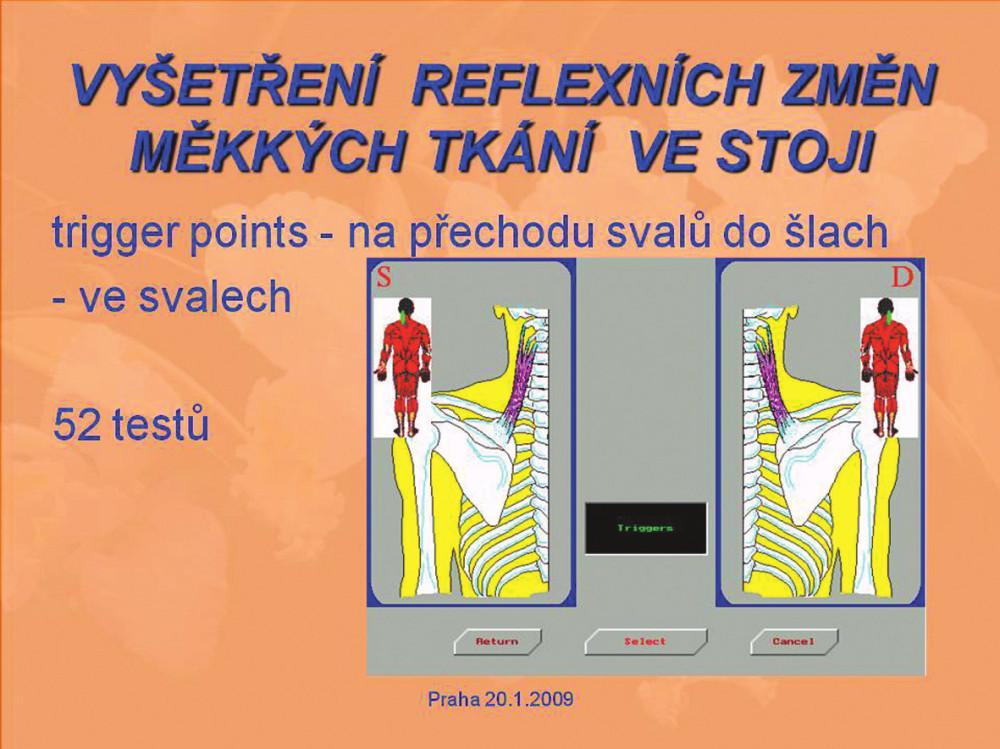 Obr. 1b. Vyšetření reflexních změn měkkých tkání ve stoji.