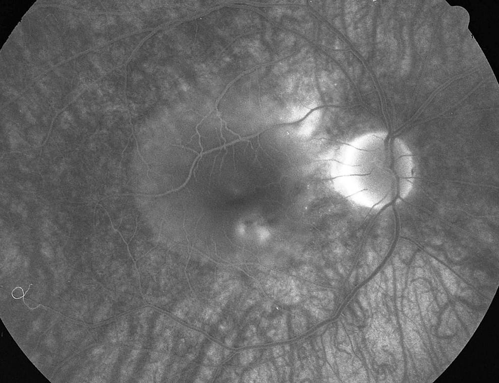 Pac. č. 5: Fluoresceínová angiografia PO: 3 body presakovania (pod centrom pri č. 5 a 6 a temporálne hore od TZN pri okraji ablácie neuroepitelu) pod rozsiahlu abláciu neuroepitelu retiny