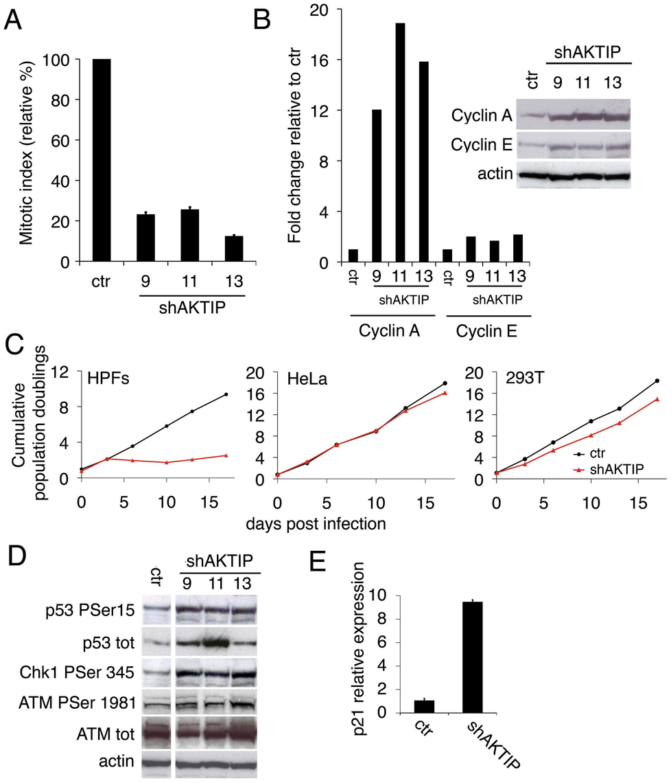 AKTIP depletion affects cell cycle progression and induces the DNA damage response (DDR).