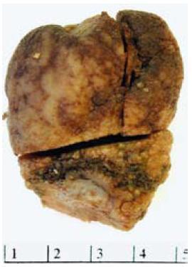 Makroskopický vzhled submukózně uloženého fibroidního zánětlivého polypu v resekátu.