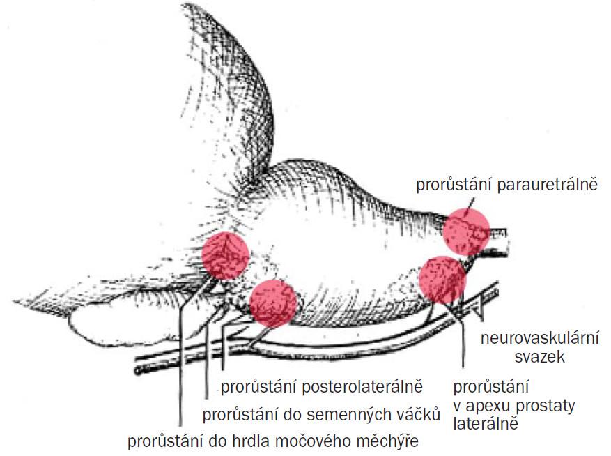 Prorůstání karcinomu prostaty.