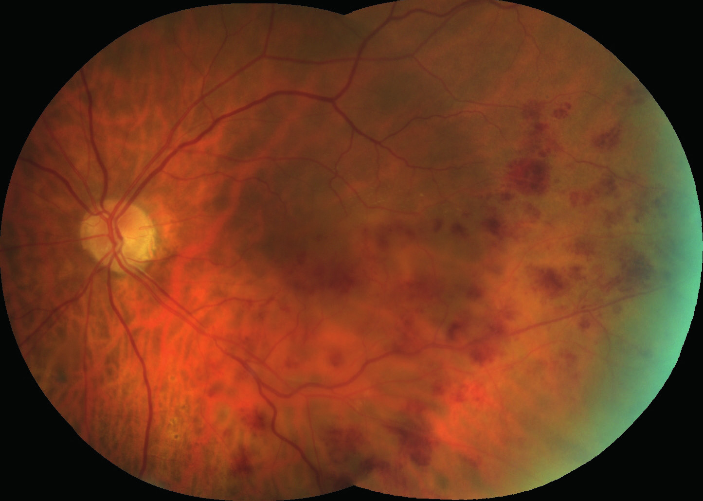 Ústup otoku a hemoragií sítnice dolního temporálního kvadrantu sítnice OL po opakované léčbě OZURDEXEM